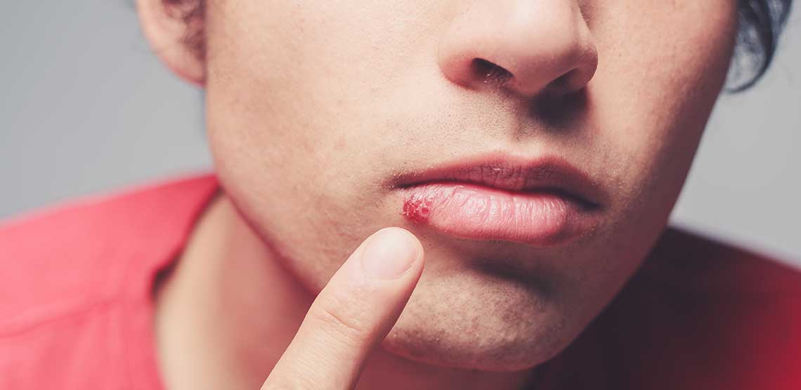 A person pointing to a cold sore on their bottom lip