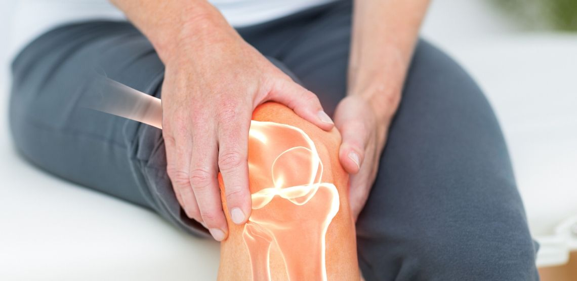 A picture showing a flare up of arthritis in the knee.