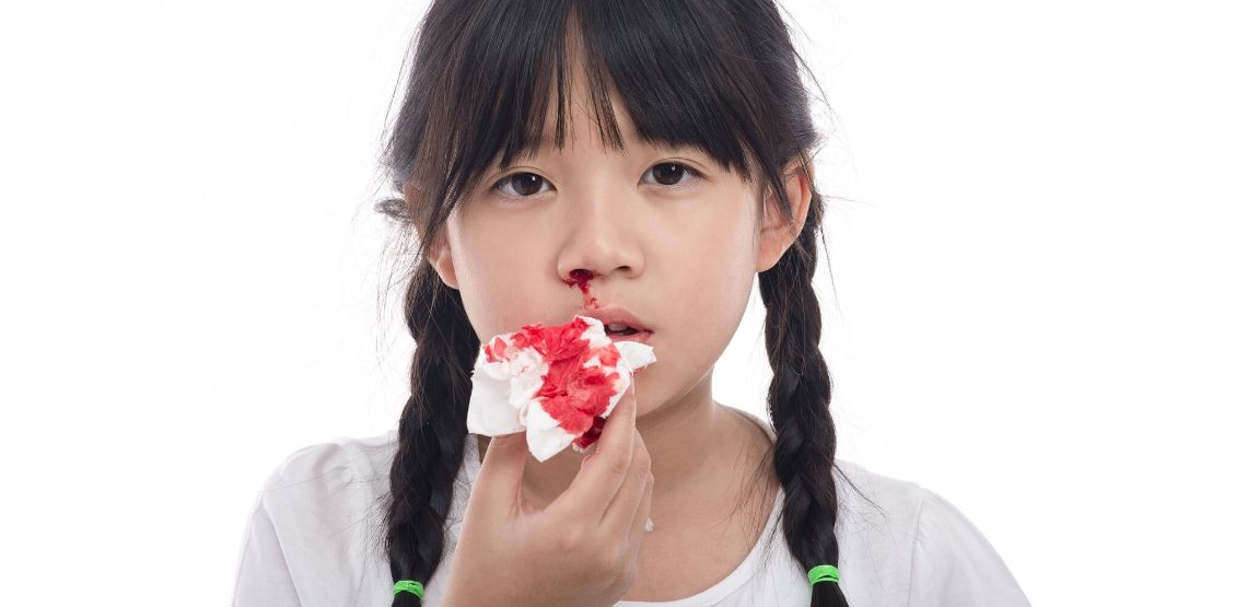 A child having a nosebleed.