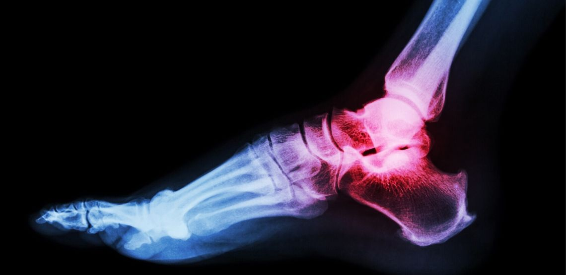 A picture showing where gout can occurr.